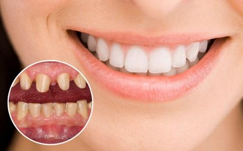 Làm răng sứ có niềng răng được không bác sĩ?-1