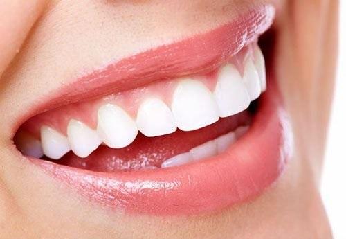 Làm răng sứ có niềng răng được không bác sĩ?-4