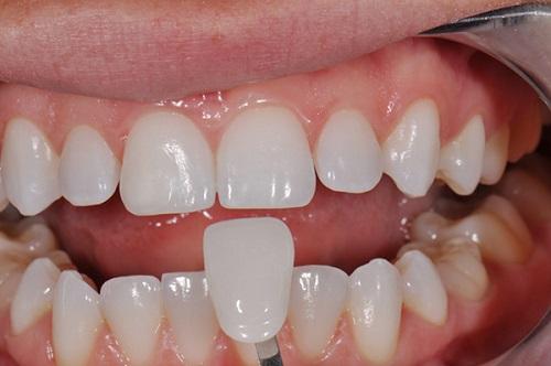 Làm răng sứ không mài răng được thực hiện như thế nào?-2