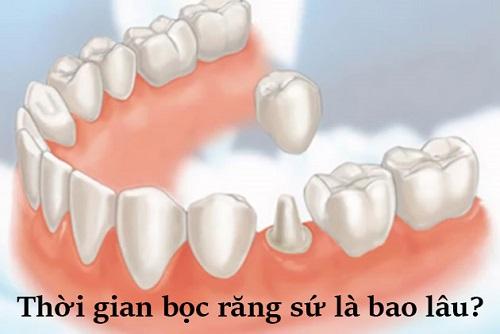 Làm răng sứ mất bao lâu thìcó hàm răng đẹp-1