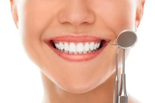 Làm răng sứ mất bao lâu thìcó hàm răng đẹp-2