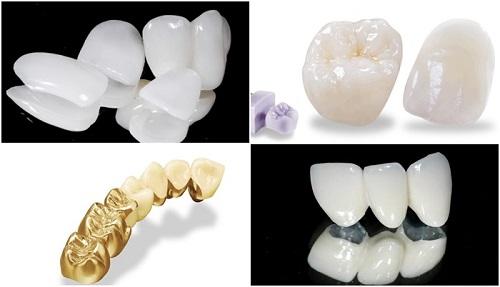 Làm răng sứ thẩm mỹ loại nào tốt nhất?-2