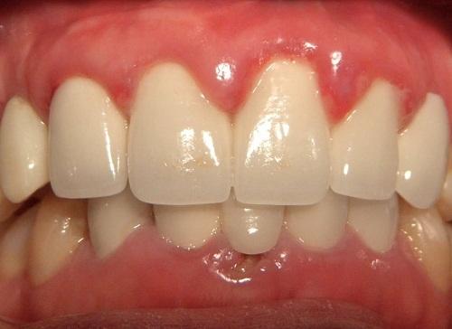 Trường hợp lắp răng sứ bị sưng lợi khắc phục ra sao?-1