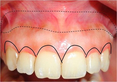 Trường hợp lắp răng sứ bị sưng lợi khắc phục ra sao?-3