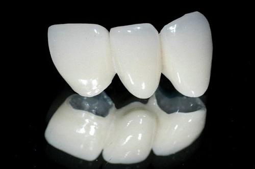 Trường hợp lắp răng sứ bị sưng lợi khắc phục ra sao?-4