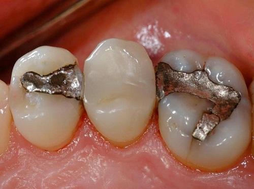 Răng sứ vỡ có hàn được không? Hàn xong có đảm bảo ăn nhai-2