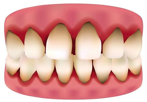 Trồng răng sứ bị đen chân răng cần xử lý ra sao?-1