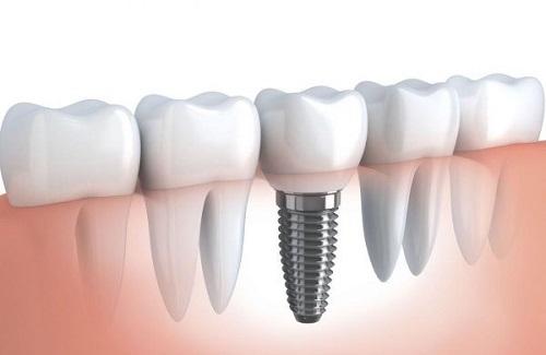Trồng răng sứ bị đen chân răng cần xử lý ra sao?-2