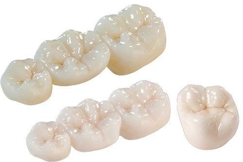 Trồng răng sứ bị đen chân răng cần xử lý ra sao?-4