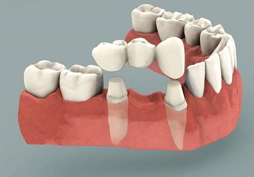 Trồng răng sứ có ảnh hưởng gì không? Tham khảo nội dung sau-1