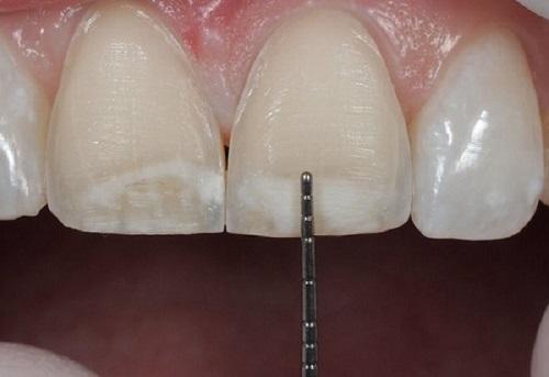 Trồng răng sứ có ảnh hưởng gì không? Tham khảo nội dung sau-2