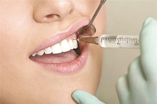 Trồng răng sứ có ảnh hưởng gì không? Tham khảo nội dung sau-3