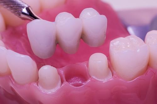 Trồng răng sứ có bền không? Duy trì được bao lâu?-1