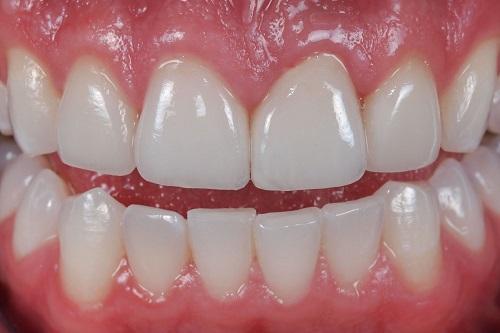 Trồng răng sứ có bền không? Duy trì được bao lâu?-2