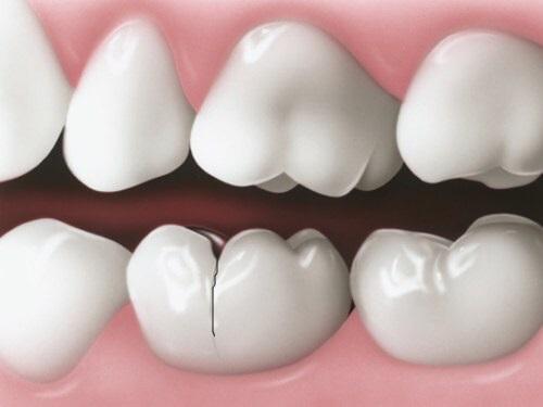 Trồng răng sứ có bị hôi miệng không? Tư vấn-2