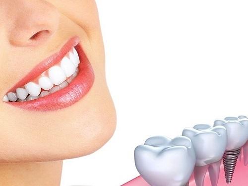 Trồng răng sứ có phải lấy tủy không? Chia sẻ từ nha khoa-3