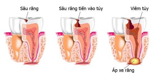 Trồng răng sứ có phải lấy tủy không? Chia sẻ từ nha khoa-1