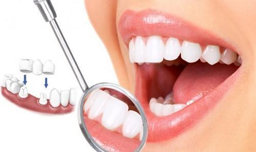 Trồng răng sứ có tháo ra được không? Giải đáp từ nha khoa-1