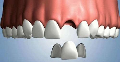 Trồng răng sứ có tháo ra được không? Giải đáp từ nha khoa-2