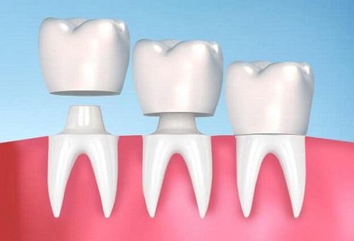 Trồng răng sứ có tháo ra được không? Giải đáp từ nha khoa-