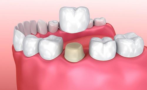 Thực hư câu chuyện trồng răng sứ có tốt không?-1