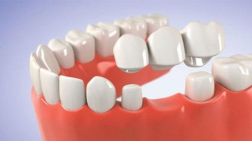 Thực hư câu chuyện trồng răng sứ có tốt không?-2