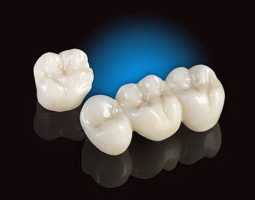 Trồng răng sứ dùng được bao lâu? Nhờ bác sĩ tư vấn-3
