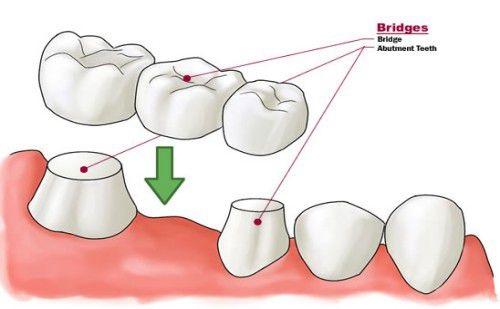 Trồng răng sứ mất thời gian bao lâu? Thực hiện ra sao?-1