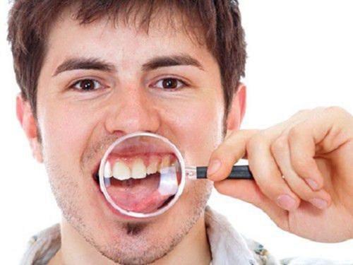 Trồng răng sứ mất thời gian bao lâu? Thực hiện ra sao?-2