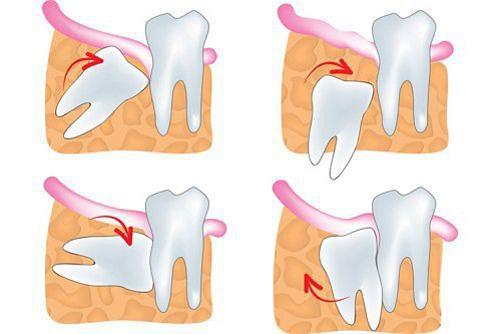 Mọc răng khôn khi mang thai có sao không? Nha khoa tư vấn 2