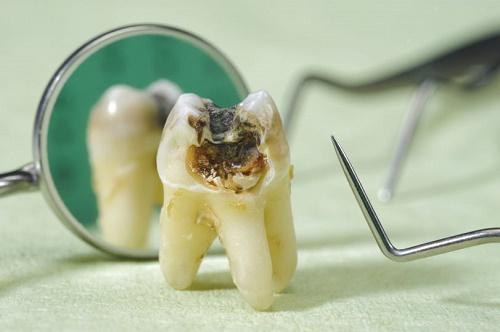 Răng khôn bị sâu nên nhổ hay trám là tốt nhất? 2