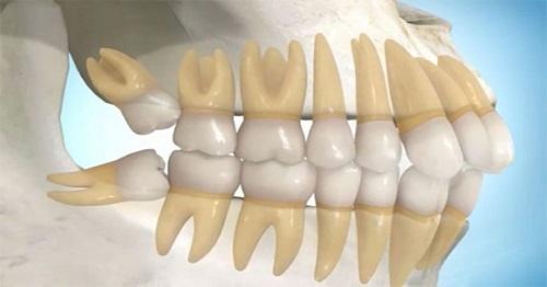 Răng khôn hàm trên mọc lệch - Phương pháp xử lý 2