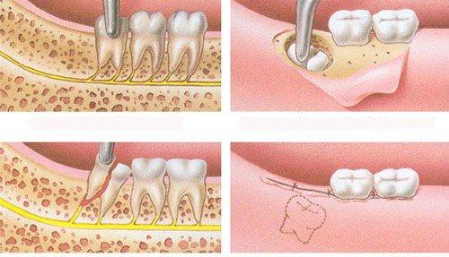 Răng khôn mọc lệch ra má phải làm sao? Giải pháp 2