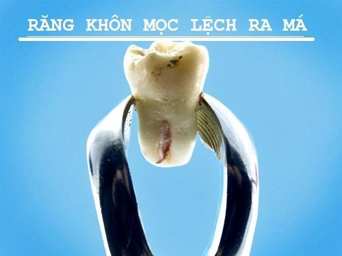 Răng khôn mọc lệch ra má phải làm sao? Giải pháp 3