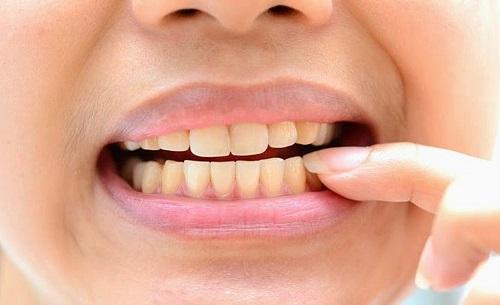 Có nên tẩy trắng răng nhiều lần - Sức khỏe răng miệng 1