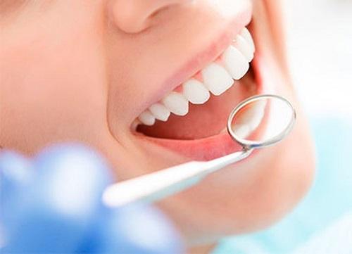Có nên tẩy trắng răng nhiều lần - Sức khỏe răng miệng 3