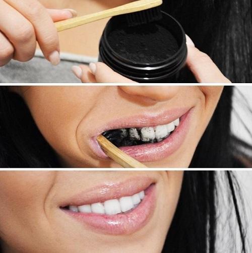 Tẩy trắng răng trong 1 tuần thực hiện với cách làm nào? 2
