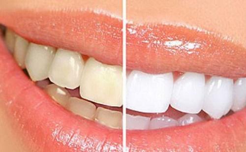 Tẩy trắng răng bằng than hoạt tính - Xu hướng 2019 3