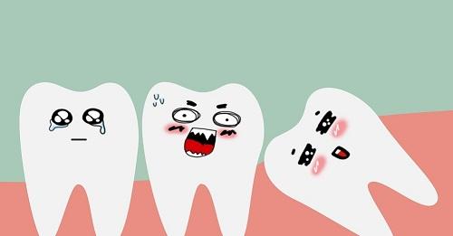 Nhổ răng khôn đau bao lâu là hết hoàn toàn? 1