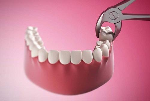Nhổ răng khôn đau bao lâu là hết hoàn toàn? 2