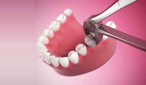 Nhổ răng khôn đau bao lâu là hết hoàn toàn? 3