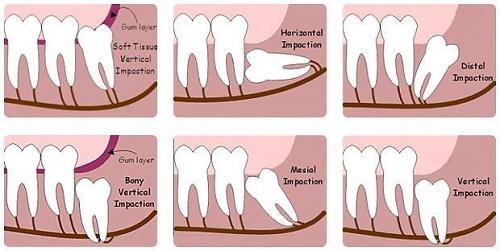 Làm gì khi răng khôn hàm dưới mọc lệch? Nha khoa tư vấn 1