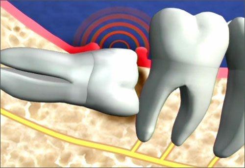 Làm gì khi răng khôn hàm dưới mọc lệch? Nha khoa tư vấn 2