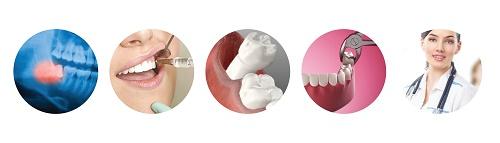 Làm gì khi răng khôn hàm dưới mọc lệch? Nha khoa tư vấn 3