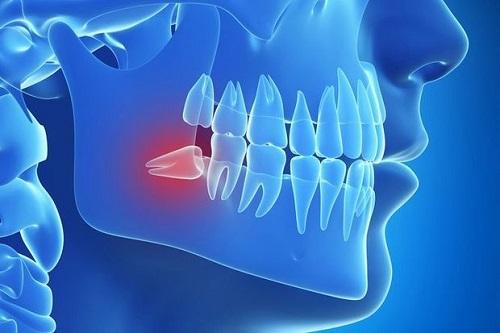 Răng khôn là răng thứ mấy trong hàm? Tìm hiểu về răng khôn 1