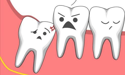 Răng khôn là răng thứ mấy trong hàm? Tìm hiểu về răng khôn 2