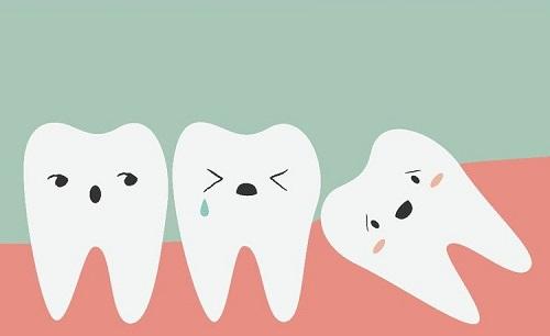 Răng khôn là răng thứ mấy trong hàm? Tìm hiểu về răng khôn 3