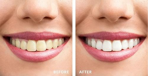 Mẹo tẩy trắng răng bằng than củi bạn chưa biết 3