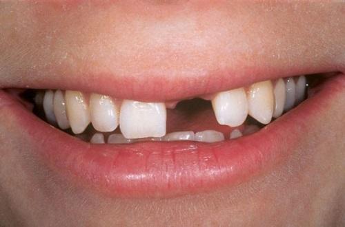 Trồng răng cửa giá bao nhiêu? Chi phí phù hợp-1