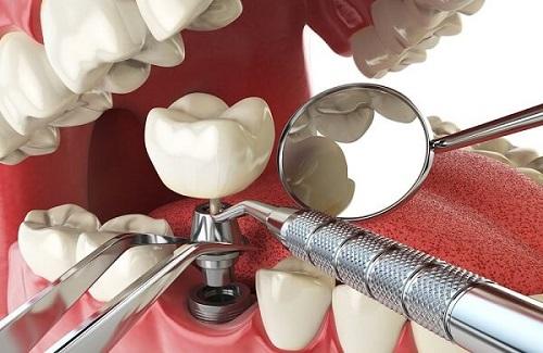 Trồng răng implant ở Cần Thơ an toàn hiệu quả cao-2